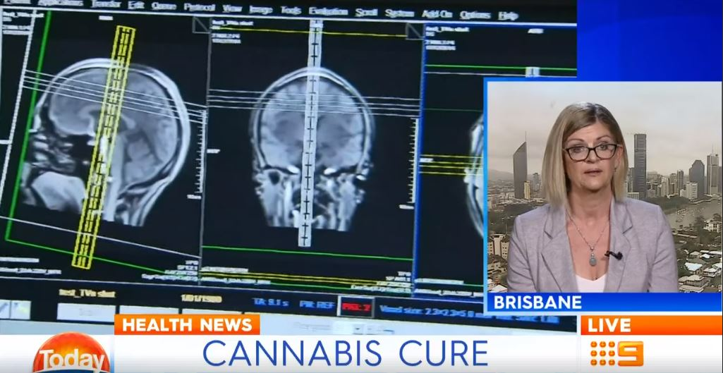 Cannabis Trial to Shrink Brain Tumours